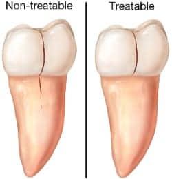 cracked-teeth